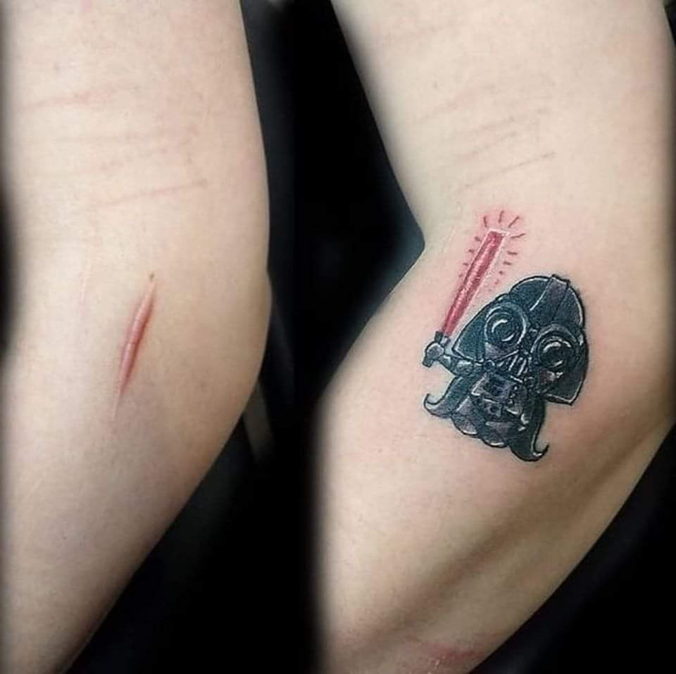 Amazing tattoos that turn scars into works of art! (15 Pics)