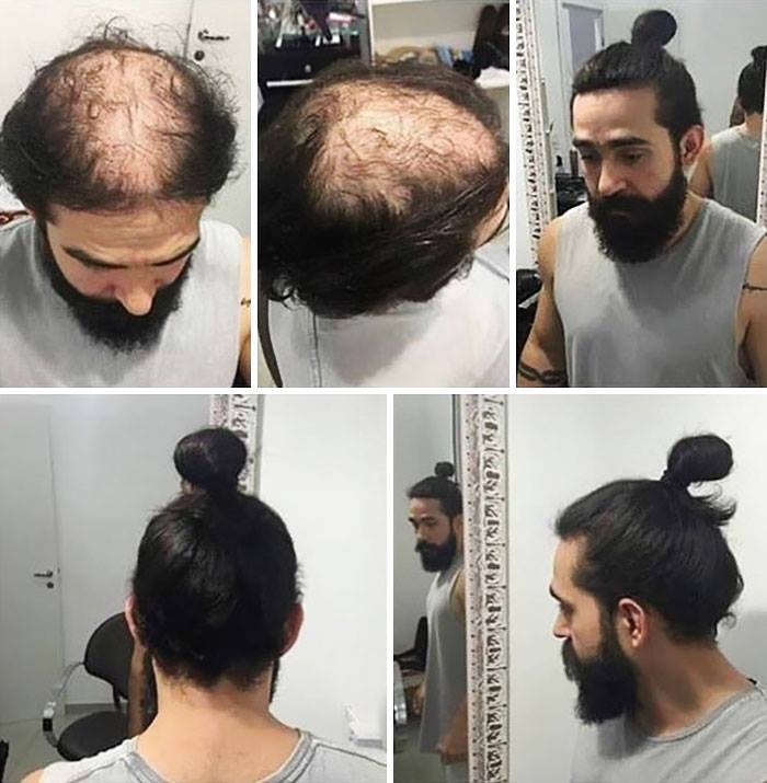 Smart People: 10 People Who Found Amazing Ways To Hide Their Bald Patches