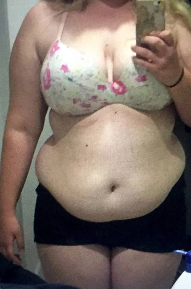 Epic Transformation: This Girl Transformed Herself Completely By Losing 64 Kilos (15 pics)