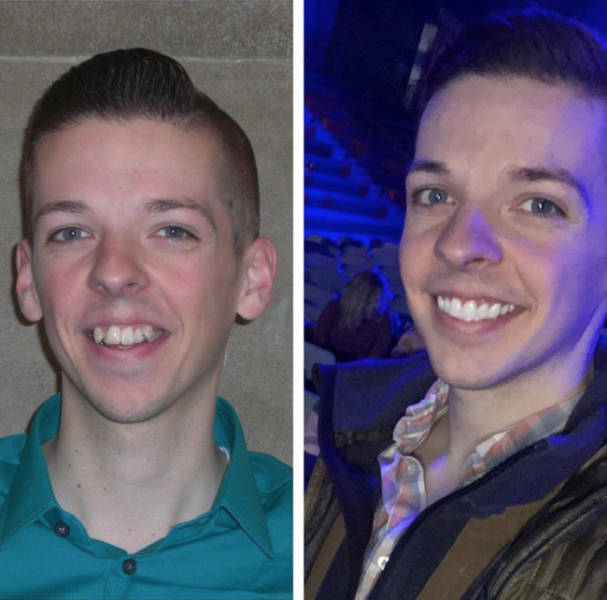 Their Life Transformations Made Them Look So Much Better (20 pics)