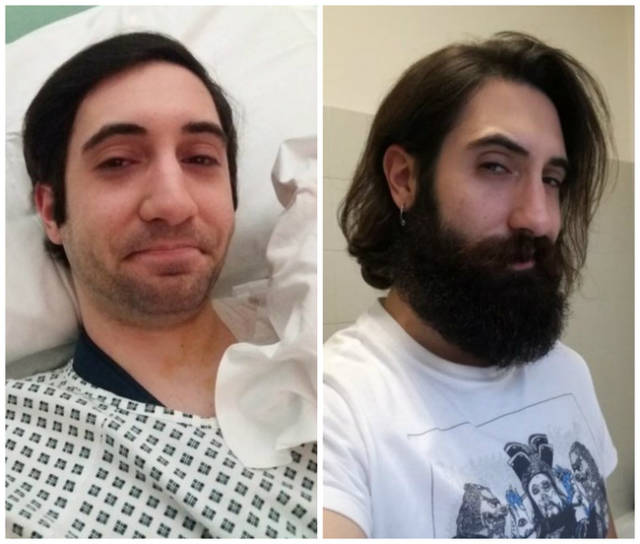 These 19 With And Without Beard Photos Are Perfect Examples Of Greatest Contrast